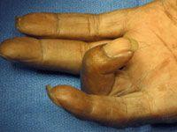 Trigger Finger   http://www.osmsgb.com/Education.aspx  #handinjuries #triggerfinger #fingerswelling