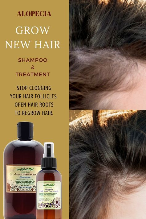 The days of nasty chemicals on hair treatments are gone. Now you can finally get an unbelievably healthy long hair from this natural alopecia hair treatment.