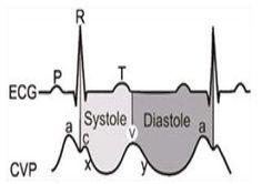 Central Venous Pressure Monitoring