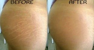 Remove and get rid of Stretch marks - #BestCreamForStretchMarks, #BestStretchMarkCream, #BestStretchMarkRemovalCream, #CreamForStretchMarks, #GetRidOfStretchMarks, #HowDoYouGetRidOfStretchMarks, #HowToRemoveStretchMarks, #LaserStretchMarkRemoval, #LaserTr