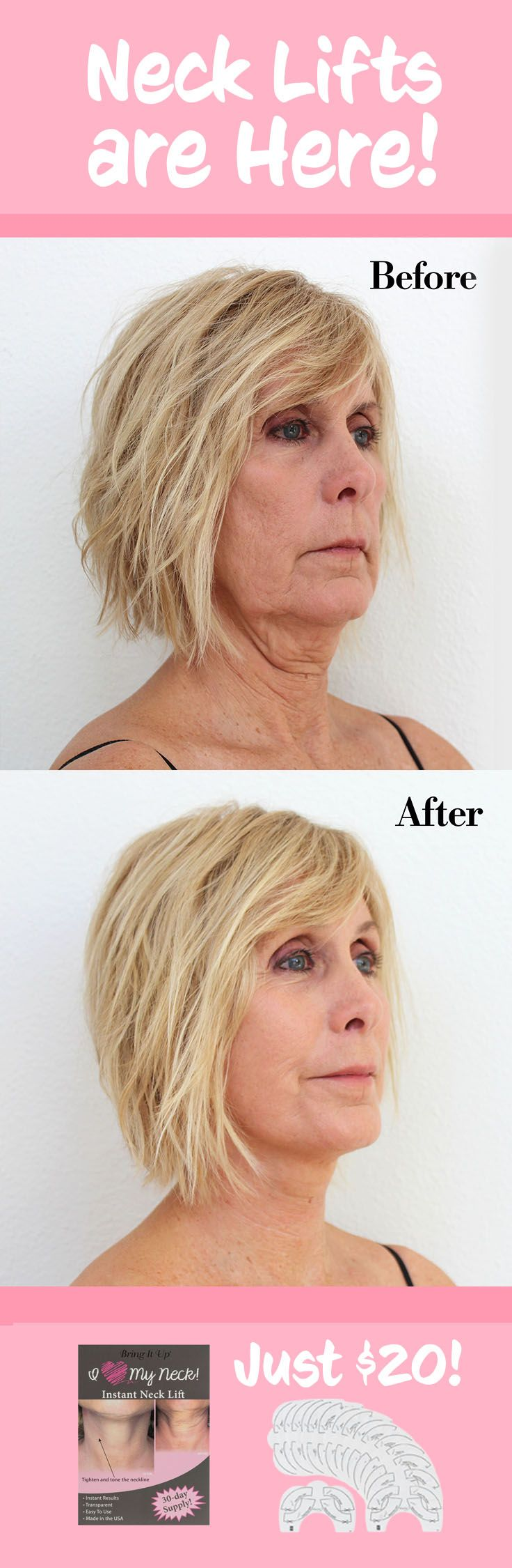 Neck Lifts are Here! And they're just $20 for 16 pairs! Don't waste your time and money with expensive surgeries when the solution is so easy! Neck lifts are easy to use. Just peel, stick, and instantly look and feel younger.   Neck Lift   Before and After Neck Lift   Anti aging remedy   anti wrinkle remedy   how to get rid of wrinkles