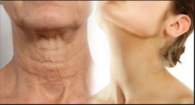 Dosiahnite aby váš krk vyzeral mladšie. skúste toto!   Báječné Ženy