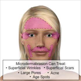 63 best microdermabrasion images on pinterest beauty hacks beauty microdermabrasion solutioingenieria Images