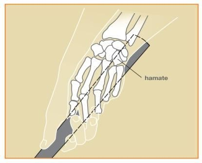 Hand injuries with golfers Figure 1: Hook of the hamate as it grips a golf club