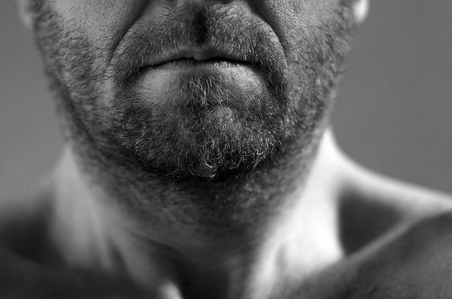 Facial Hair Transplants Allegedly on the Rise in New York City Thanks to Bearded Hipsters in Brooklyn
