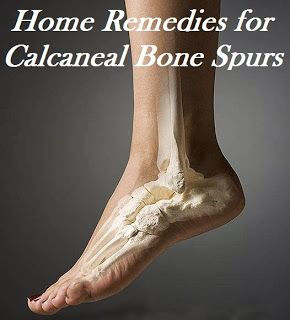 If I had a bone spur, I'd try this......Home Remedies for Calcaneal Bone Spurs