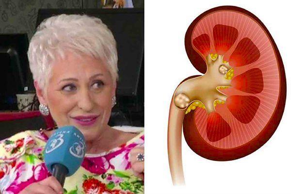 Cel mai nou leac pentru pietre la rinichi, dezvăluit de Lidia Fecioru. -