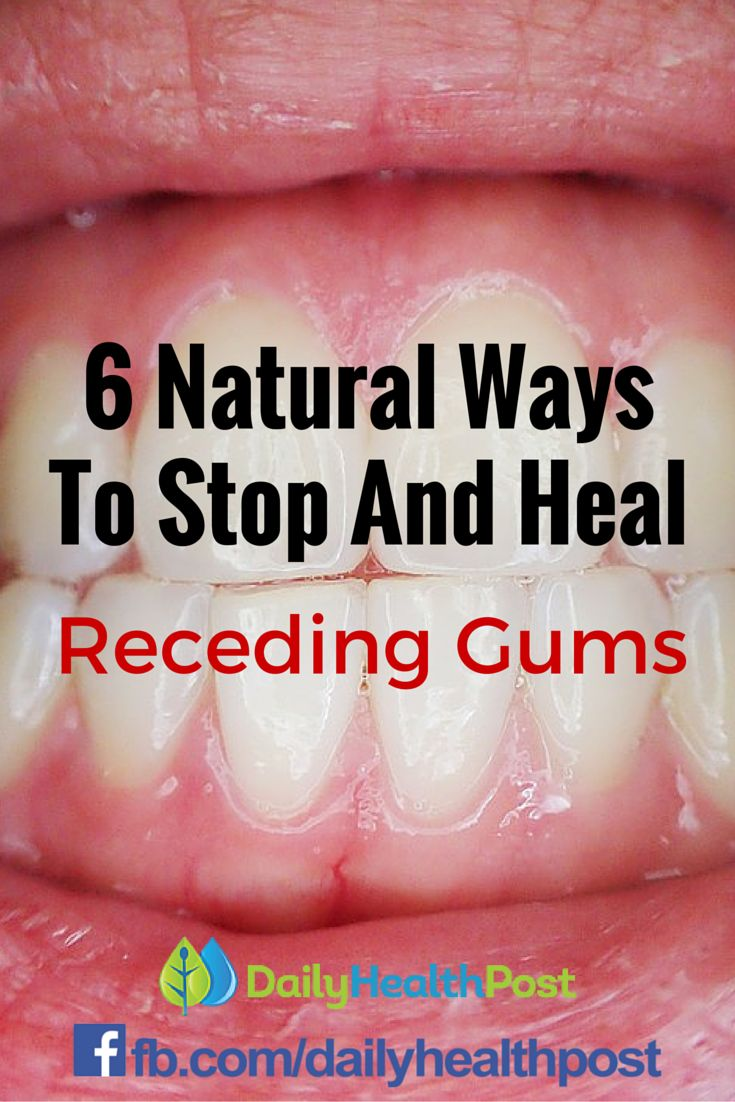 how to tell if you have receding gums