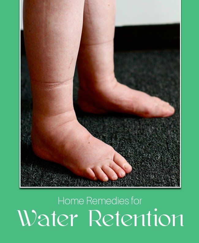 Natural Treatment Of Edema Water Retention