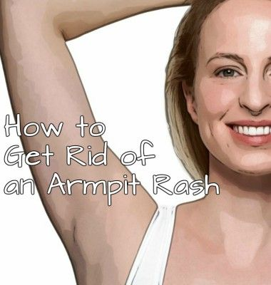 How to Get Rid of an Armpit Rash
