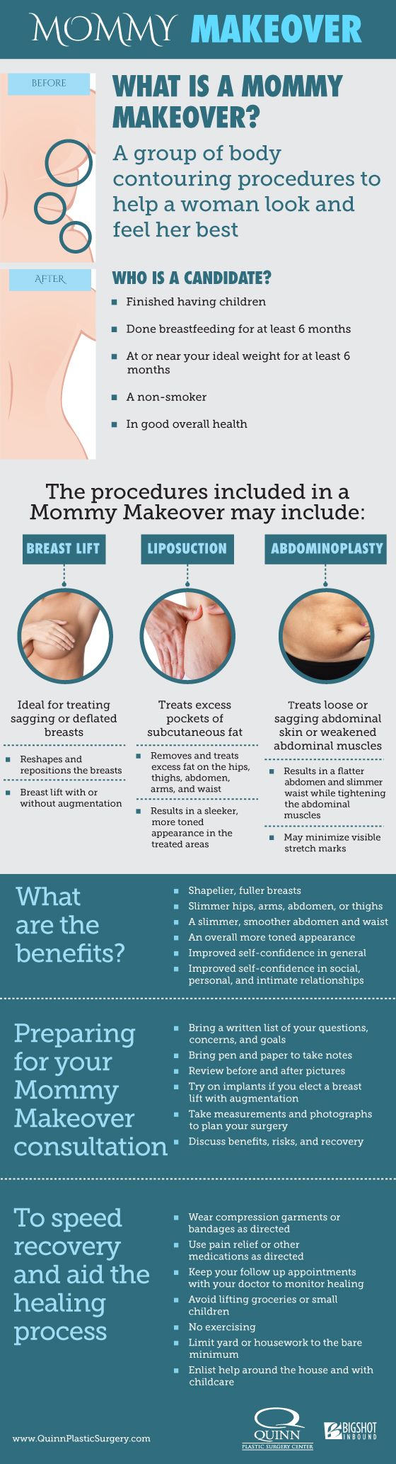 88 best Breast Surgery images on Pinterest | Plastic surgery, Bad ...