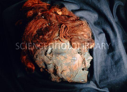 Mummified head of Stidsholt Woman, a bog body