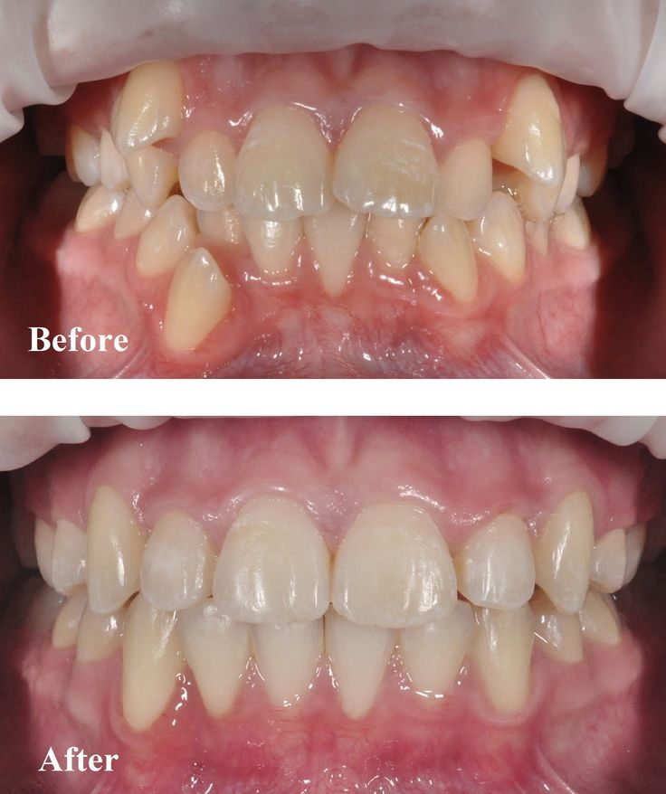 Orthodontics treatment done by Dr Nathan Le. This patient