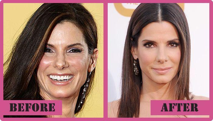 sandra bullock Plastic Surgery Before and After Sandra Bullock Plastic Surgery #SandraBullockPlasticSurgery #SandraBullock #gossipmagazines