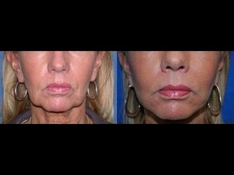 Use These Cheek Building Exercises To Make Your Face Fuller And Reduce Saggy Skin - YouTube