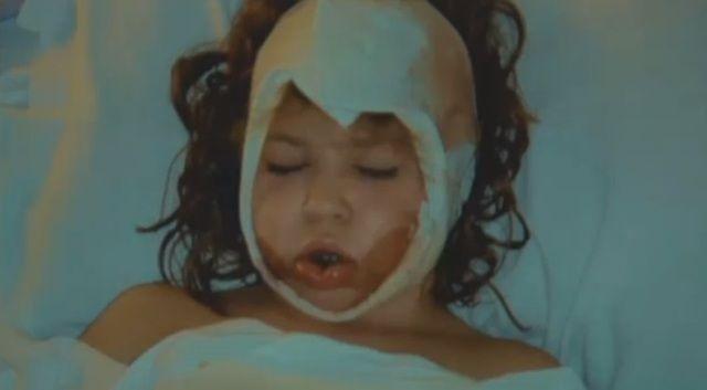 Quando aveva 8 anni la cintura di sicurezza le aveva strappato il volto e lei aveva rischiato di rimanere sfregiata a vita. Dopo 11 anni è tornata a incontrare il medico che l'ha curata. Non immaginerete mai com'è adesso e cosa si sono detti