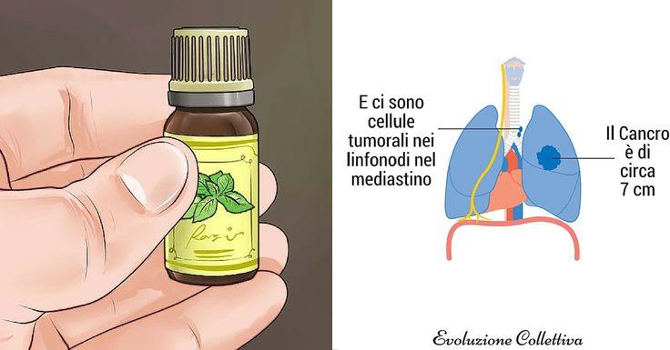 Gli Oli Essenziali che fermano il Cancro: quali sono e come usarli. - http://frasideilibri.com/come-usare-oli-essenziali-che-fermano-il-cancro-quali-sono/