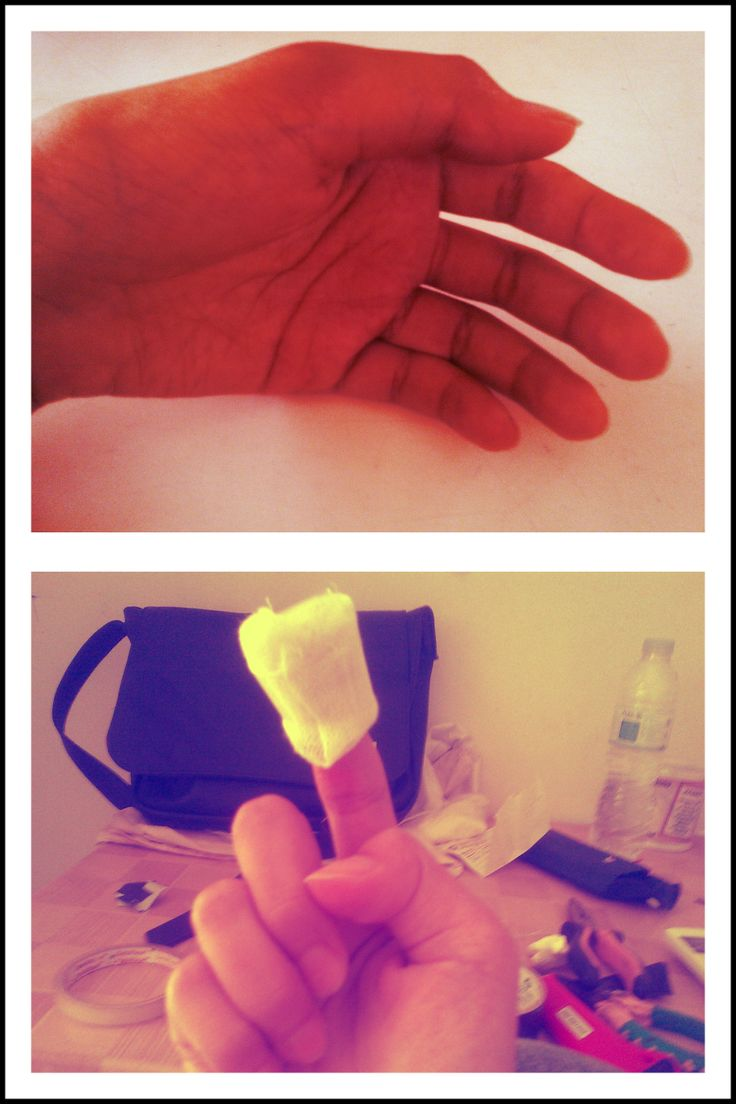 two days ago, i cut my right point finger. And today, my left thumb get hurt by an accident.