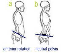 If you have a problem with lower back pain and a belly pooch that refuses to go away, you may have an excessive anterior pelvic tilt. Do these 5 stretches.