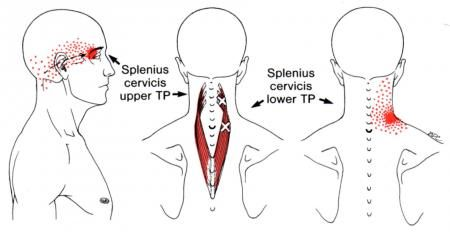 Splenius Capitis | The Trigger Point & Referred Pain Guide