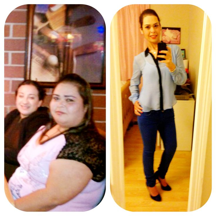 39 best images about Gastric Bypass (rny) on Pinterest ...