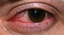 CLARE, or contact lens associated red eye, is a group of inflammatory complications from contact lens wear.