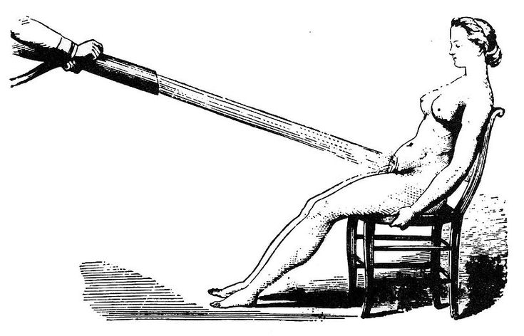 """Water massages as a treatment for hysteria (c. 1860). Women considered to be suffering from hysteria would sometimes undergo """"pelvic massage"""" – manual stimulation of the genitals by the doctor until the patient experienced """"hysterical paroxysm"""" (orgasm)."""