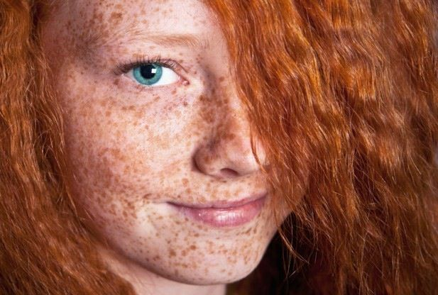 red head blue eyes freckles
