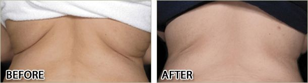 Love handles treated with Lipo Ex