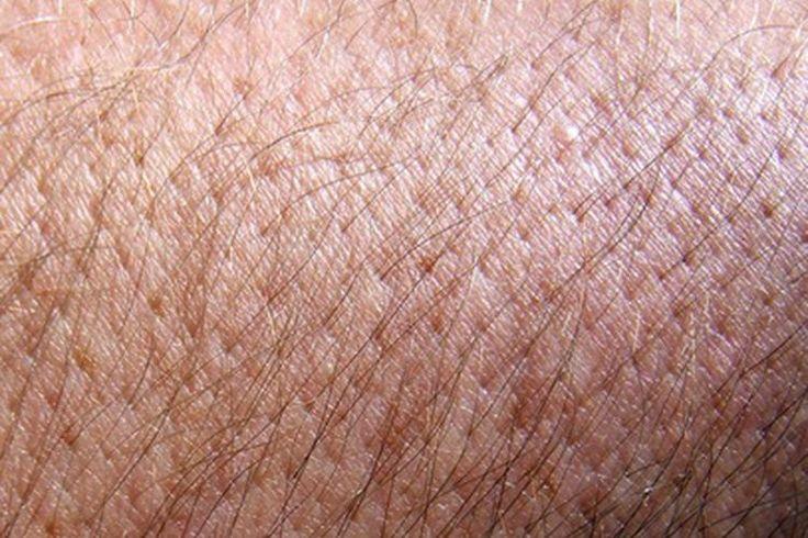 Los signos y síntomas de la alergia por picadura de pulga en el ser humano | Muy Fitness