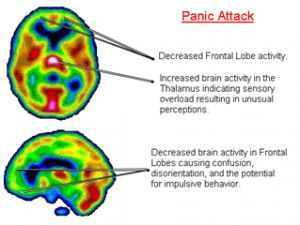 This is proof that's its in the brain not just people thinking they have it or using it as an excuse.
