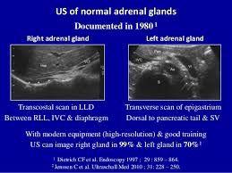Výsledek obrázku pro canine adrenal gland ultrasound ...