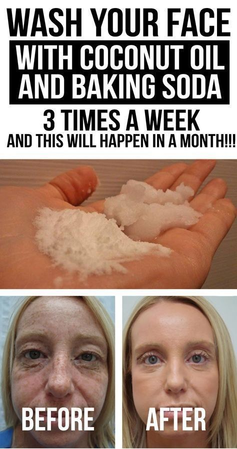 WASH YOUR FACE WITH COCONUT OIL AND BAKING SODA 3 TIMES A WEEK, AND THIS WILL HAPPEN IN A MONTH♫