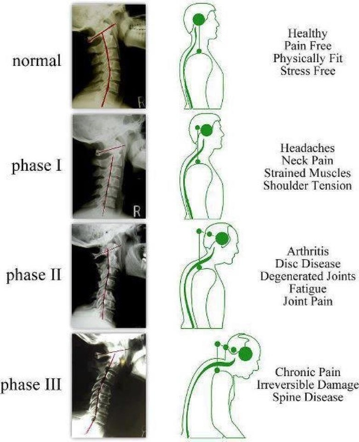 How important is posture