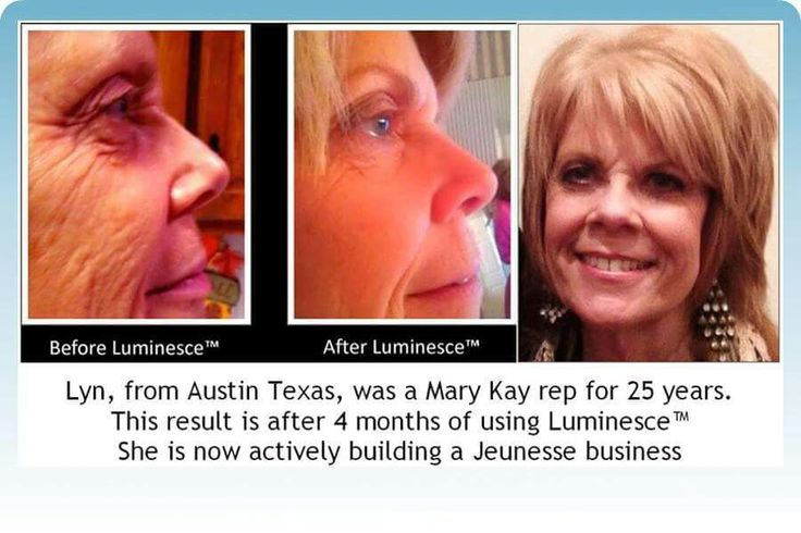 No surgery needed!!  Check out Jeunesse products www.kendi73.jeunesseglobal.com for more information