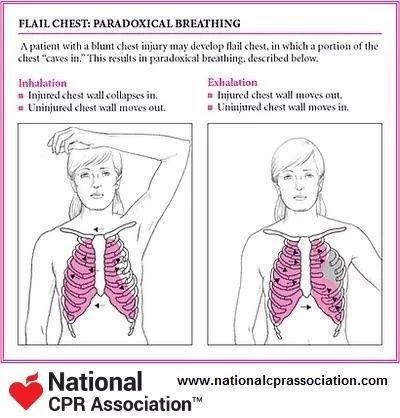 Flail Chest:Paradoxical Breathing #EMS #EMT #Paramedic #firstresponder #nationalCPRassociation #nationalCPR