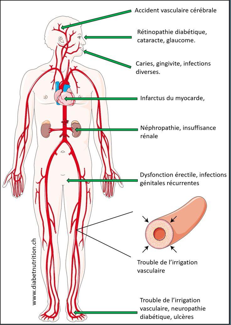 Schéma des complications du diabète