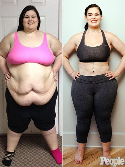 @people blogger discusses losing more than 208lbs and having three body contouring surgeries. #PlasticSurgery