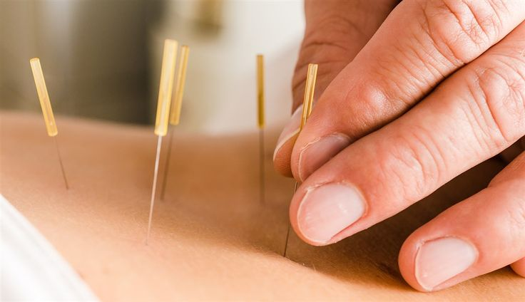 http://www.saglikhastalik.com/akupunktur-hangi-hastaliklari-tedavi-eder/  #akupunktur