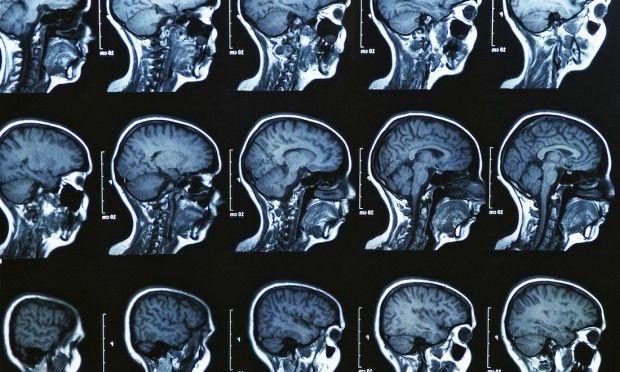 #Parkinson: in arrivo nuove cure per bloccare la malattia - Panorama