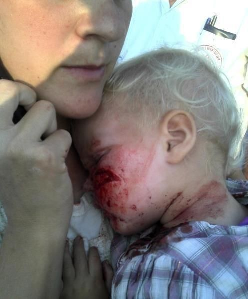This is a jewish baby who got stoned by arabs today, if it was on the other side, it would have being posted by all the media in the world. Now with Facebook we have the power to spread it out all over the net! Horrible!  So true, Pray for his recovery.
