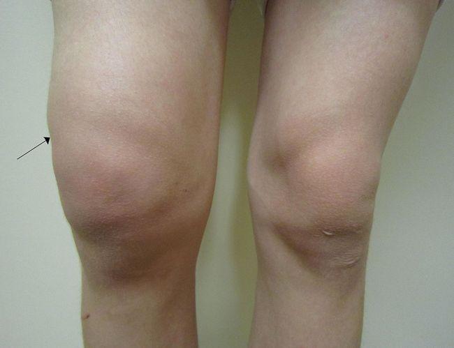 Existuje veľa chutných protizápalových potravín, ktoré môžu pomôcť opuchnutým kĺbom, bolestiam prstov a dokonca príznakom reumatoidnej artritídy.