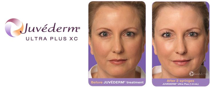Juvederm    Our leading-edge skin rejuvenation techniques include Laser Aesthetics, Microdermabrasion and Intense Pulsed Light.  http://qoo.ly/kfiaj