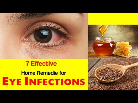 Top 7 home remedies for eye infections   eye infections treatment