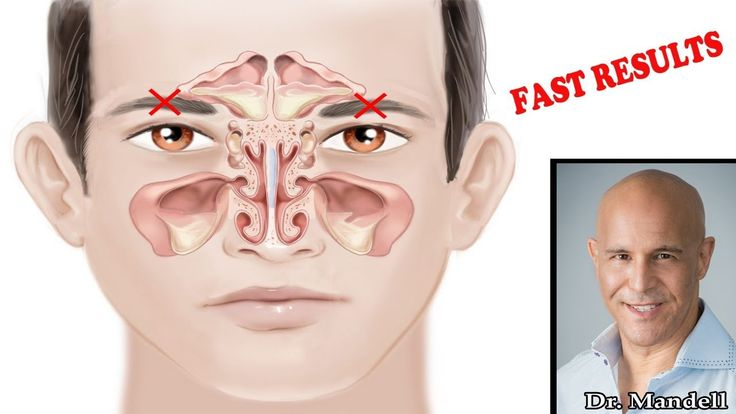 Stuff Clogged Sinus & Nose (Super-Fast Paranasal Relief) - Dr Alan Mande...