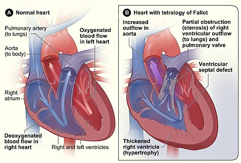 congenital heart defect Tetralogy of Fallot. This is what Emma'a heart looked like before her open-heart surgery December 15, 2009.