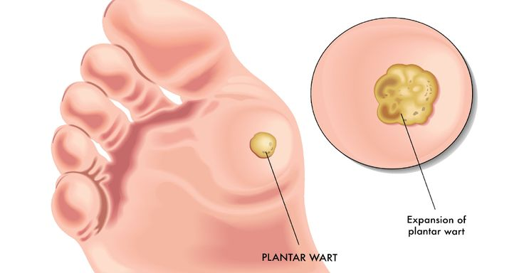 Warts are benign skin growths that evolve as a lump of skin. Most come from the human papillomavirus (HPV).