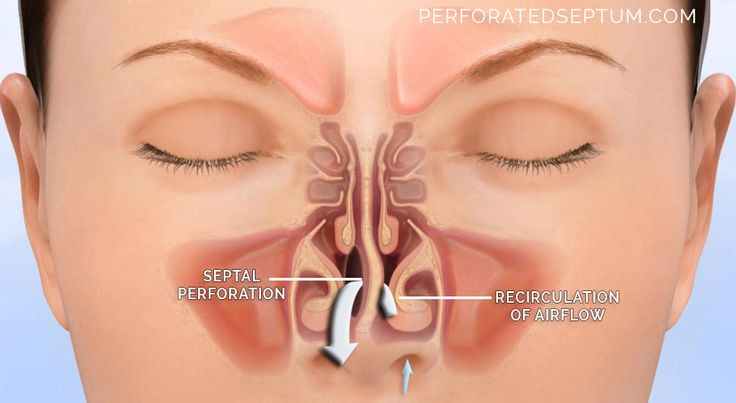 Cocaine Septum Damage | Figure 1. Perforated septum is a hole in the nasal septum that cause ...