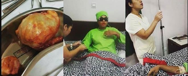 Toyin Lawani survives fibroid surgery