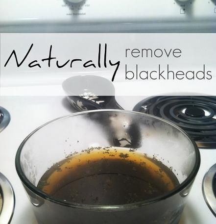 5 DIY Natural Ways to Remove Blackheads| Did this, can literally see my blackheads coming out now! Going to slather honey on after for a 20min facial and then repeat steam steps again. #blackheads, #remove_blackheads, #beauty_tips.